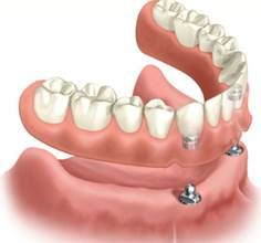 Comprehensive Dental Implant Surgery at Prestige Dental Centers at Colorado.  http://www.prestigedentalimplantcenter.com/dental-implants-denture-wearers/dental-implants-denture-wearers.html
