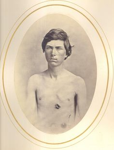 *FREDERICK BENTLY ~ 15 yrs old, shot through the chest by a Confederate minie ball. Co A 185th NY Infantry Frederick enlisted in the army in 1864 when he was only 15. The muster rolls list lists him age 18, multiple census records reveal his actual...