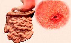 Basta de Gastritis - Basta de Gastritis - Como eliminar la acidez y la gastritis de por vida en un 2×3 con un conocido y eficaz remedio - Basta de seguir sufriendo, aqui te digo como eliminar de forma 100% natural tu gastritis, resultados en 21 dias o menos - Vas a descubrir el método más efectivo y hasta ahora guardado CELOSAMENTE por los gastroenterólogos más prestigiosos del mundo