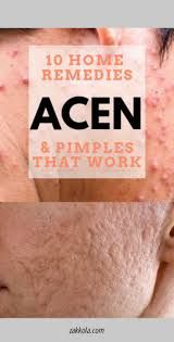 Tips on how to get rid of acne, blackheads, acne scars, pimples, zits. Perfect acne treatments and acne remedies as well as acne scar treatments! Foods For Clear Skin, Clear Skin Tips, How To Remove Pimples, How To Get Rid Of Acne, Back Acne Treatment, Acne Treatments, Hormonal Acne, Acne Remedies, Acne Prone Skin