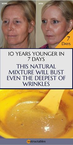 Powerful Anti Wrinkle Face Mask, Yogurt, Lemon Juice and Sandalwood Recipe Skin Care anti wrinkle cream Face Wrinkles, Prevent Wrinkles, Under Eye Wrinkles, Arthritis, Prévenir Les Rides, Anti Ride, Tips Belleza, Best Face Products, Lush Products