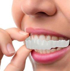MAGIC Teeth Brace - Bigsuprise Perfect Smile Teeth, Snap On Smile, Braces Cost, Double Menton, Veneers Teeth, Dental Veneers, Teeth Braces, Stained Teeth, Cosmetic Dentistry