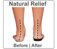 Vionic Orthaheel Relief Full Length  For all the benefits of a custom made orthotic without the costliness, try out the Orthaheel Relief Full Length. This orthotic seamlessly replaces your old insoles to help realign and protect your feet. Slide in a pair of Orthaheel Reliefs today and discover the difference.