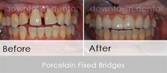 1. Porcelain Fixed Bridges - before and after