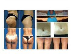Az ageLOC Galvanic Body Trio csomagban megtalálható az új ageLOC Galvanic Body Spa készülék, valamint a két továbbfejlesztett öregedésgátló termék, az ageLOC Body Shaping Gel (Alakformáló gél) és az ageLOC Dermatic Effects (Testfeszesesítő testápoló) - mindezt a kontúrosabb, lágyabb és tónusosabb test megvalósításáért!