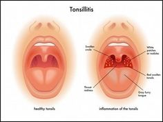 In adults tonsillitis treating