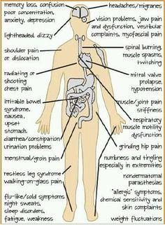 Fibromyalgia symptom chart