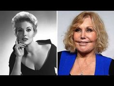 15 Eye-Catching Celebs Destroyed By Plastic Surgery Bad Celebrity Plastic Surgery, Botched Plastic Surgery, Bad Plastic Surgeries, Plastic Surgery Gone Wrong, Celebrities With Plastic Surgery, Celebrities Before And After, Celebrities Then And Now, Beautiful Celebrities