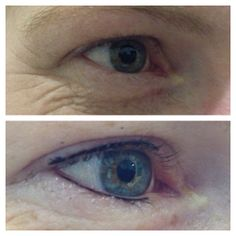 Upper and Lower Eyeliner - by Natalie #cosmetictattoo #permanentmakeup #beauty #goldcoast #salon