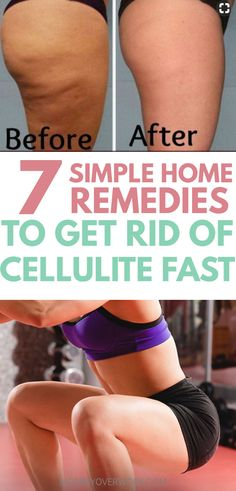 These are really easy natural home remedies and exercises to get rid of cellulite fast! I tried the scrub and it took about 2 weeks for me to see enough of a before and after change. I'm also adding more of the power foods into my diet and trying out the workout to help keep it away, lol! #celluliteworkout #cellulitetreatment #cellulitethighs