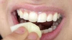 Dental whitening treatment easy teeth whitening,local teeth whitening mobile teeth whitening,opalescence whitening teeth whitening options at dentist. Hair Loss Remedies, Home Remedies, Natural Remedies, Cute Diy Projects, Teeth Care, White Teeth, Dental Care, Dental Hygiene, Teeth Whitening