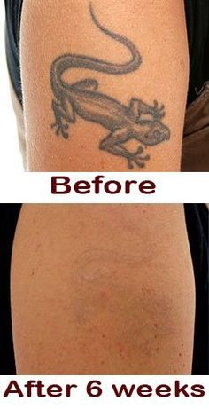 Skin Color Tattoos, Green Tattoos, Red Ink Tattoos, Word Tattoos, At Home Tattoo Removal, Natural Tattoo Removal, Brown Tattoo Ink, Faded Tattoo, Tatoo