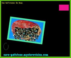 Can Gallstones Go Away 154326 - Cure Gallstone