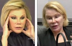 Before and After Plastic Surgery Gone Wrong | Surgery Before and After » Joan Rivers Plastic Surgery Gone Wrong ...