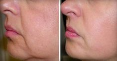 As we age, the elasticity and tightness of our skin significantly reduces, which in turn leads to wrinkles and sagging skin. Fortunately, you can effectively reduce the wrinkles and sagging skin with the help of [. Natural Teething Remedies, Natural Cures, Natural Life, Natural Skin, Natural Health, Beauty Care, Beauty Hacks, Les Rides, Sagging Skin