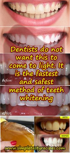 Dentists do not want this to come to light. It is the fastest and safest method of teeth whitening