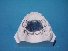 Pendulum de Hilgers  Aparatología ortodoncica inicialmente diseñado para lograr distalamiento molar.  Puede ser uni o bilateral.  Se cementa preactivado y en caso de ser necesario puede realizarse una activación intraoral adicional.  Tener presente que en casos de distalamiento debe estar ausente el tercer molar