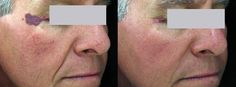 Before and After SpectraLift Non Surgical Laser Facelift Laser Face Lift, Mini Face Lift, Facelift Without Surgery, Non Surgical Facelift, Neck Lift, Skin Resurfacing, Facial Rejuvenation