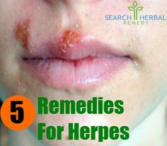5 Remedies for Herpes. http://oneminuteherpescure.com/herpescure2014/?hop=0