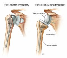 Reverse shoulder arthroplasty is performed on people with rotator cuff or irreparable rotator cuff tear. The surgery restores motion to the shoulders Reverse Shoulder Replacement, Physical Therapy Shoulder, Humerus Fracture, Shoulder Dislocation, Rotator Cuff Tear, Shoulder Surgery, Anatomy And Physiology, Arthritis, Medical