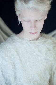 #albino by Анна Данилова, via Behance #albinism