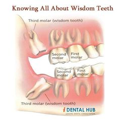 Wisdom tooth are the last to erupt in oral cavity. They are usually accompanied by severe pain in back molars. Special care has to be taken after wisdom teeth removal like cold compress, mouthwash, flossing and rising with warm saline water. Wisdom Teeth Removal Procedure, Wisdom Teeth Aftercare, Impacted Wisdom Teeth, Teeth Implants, Dental Implants, Dental Surgery, Tooth Extraction Healing, Tooth Pain, Tooth Ache