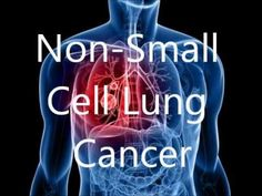 Non-small cell lung cancer (NSCLC) is most common type of lung cancer. About 85% to 90% of lung cancers belong to this type of lung cancer. It has three main types. But their diagnosis and treatment are nearly similar. The lung forms an important part of respiratory system. Non-small cell lung cancer can affect lungs as well as spread to other parts of body.