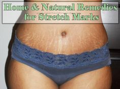 Home & Natural Remedies for Stretch Marks