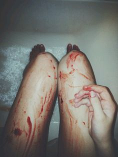 """""""There's Blood on your legs, I love you.""""- I am Kloot 'Twisted' (I don't recommend or condone any cutting or anything. I just like that line and this picture reminded me of it. Its All My Fault, Cuts And Bruises, Soft Grunge, Writing Inspiration, Dark Side, It Hurts, At Least, Life, Darkness"""