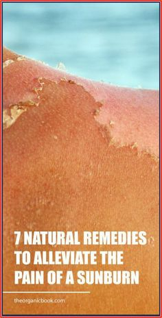 7 Natural Remedies to Alleviate the Pain of a Sunburn – Herbal Medicine Book Natural Health Tips, Natural Health Remedies, Natural Healing, Natural Medicine, Herbal Medicine, Baking Soda Bath, Medicine Book, Healthy Lifestyle Tips, Pms