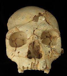 Cráneo 17, de hace 436.000 años, hallado en la Sima de los huesos (Atapuerca, Burgos), con dos perforaciones en la frente posiblemente debidas a una agresión mortal intencionada. / AVIER TRUEBA / MADRID SCIENTIFIC FILMS