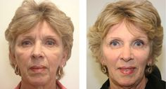 Chinese Facelift: Employ These Facial Revitalization Exercises To Cure Smile Lines