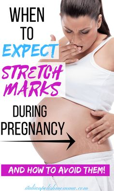 Worried about preventing stretch marks during pregnancy? Here are secrets that I used to prevent stretch marks during 3 pregnancies! These stretch mark prevention tips actually worked and can work for you too! Prevent stretch marks during pregnancy! Stretch Marks During Pregnancy, Prevent Stretch Marks, Stretch Mark Cream, Second Trimester, Morning Sickness, Pregnant Mom, First Time Moms, Pregnancy Tips, Pregnancy Eating
