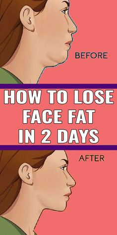 So it is difficult to shed face fat and can take a lot of work It is not too Tough to get the looks of a design and losing confront fat That is why we developed 7 workout. Reduce Face Fat, Muscles Of The Neck, 7 Workout, Reduce Double Chin, Natural Face Lift, Muscle Stretches, Face Exercises, Abdominal Exercises, Fitness Exercises