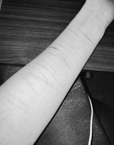 scars ,self injury