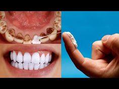 πώς λευκαίνω τα δόντια μου στο σπίτι σε 3 ημέρες και αφαιρώ την οδοντική πλάκα χωρίς τον οδοντίατρο - YouTube Tartar Removal, Tooth Powder, Home Health Remedies, Diy Crafts Hacks, White Teeth, Dental Health, Bago, Teeth Whitening, Diy Beauty