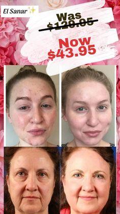 Organic Skin Care, Natural Skin Care, Anti Aging, Face Massage, Korean Skincare, Homemade Beauty, Alternative Medicine, Skin Treatments, Beauty Routines