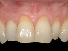 How to Grow Back Receding Gums Naturally | StethNews
