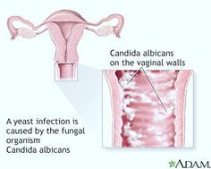 Cure vaginal yeast infection today ! Visit our website http://yeastinfectionsolution.info #health #women #yeast #curecandida #candida #infection #treatment #candida #albicans #healthy #life