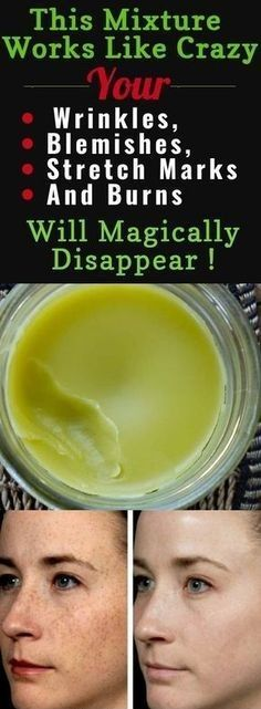 Skin Beauty Remedies Prepare This Mixture Right Now And Your Wrinkles, Blemishes, Stretch Marks And Burns Will Magically Disappear! Piel Natural, Natural Skin, Natural Beauty, Organic Beauty, Home Remedies, Natural Remedies, Beauty Hacks For Teens, Tips Belleza, Beauty Recipe