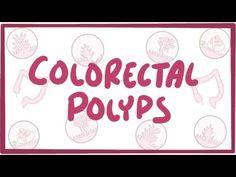 Volvulus - causes, symptoms, diagnosis, treatment, pathology - YouTube