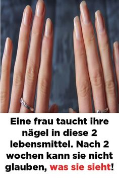 A woman dips her nails in these 2 foods. After 2 weeks she can not Eine Frau taucht ihre. Beauty Skin, Hair Beauty, Punny Halloween Costumes, Winter Nails 2019, Beauty Recipe, Simple Nails, Beauty Make Up, The Ordinary, How To Lose Weight Fast