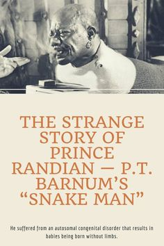"Prince Randian was a performer famous for the feats he could accomplish with no limbs. Popularized by PT Barnum, he soon became popularly known as the ""Snake Man. Pt Barnum, Strange Stories, Mysteries Of The World, Bizarre Art, Celebrity Updates, Amazing Facts, Interesting Facts, Fun Facts"