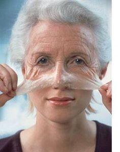 Las arrugas: causas, tipos y clasificaciónfotoenvejecimiento | Richard Glogau | piel | arrugas estáticas | arrugas dinámicas | arrugas gravitacionales | lentigo | queratosis | colágeno | manchas | ptosis tisular | líneas de expresión: flaccidez | senil | epidermis | dermis | envejecimiento facial | cosmética | maquillaje permanente | | COSMETOLOGAS.COM - Belleza y estética profesional