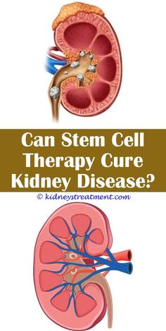 Kidney disease remedies renal diet snacks,kidney failure funny best countries for kidney transplant,dr clark kidney cleanse foods that promote kidney health. Kidney Failure Causes, Kidney Disease Symptoms, Polycystic Kidney Disease, Kidney Detox, Kidney Cleanse, Kidney Health, Vitamine B12, Kidney Dialysis, Healthy Kidneys