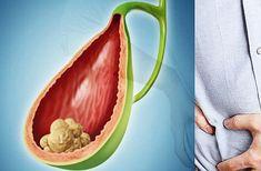 Dacă simți o durere bruscă în zona abdomenului sau a spatelui, însoțită de transpirații, febră, frisoane și greață, este posibil să ai un atac de bilă, sau o criză biliară. Nursing, Banana, Fruit, Health, Projects, Food, Medicine, Log Projects, Blue Prints