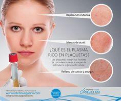 Plasma rico en plaquetas, un tratamiento excelente utilizado para diversas áreas de medicina regenerativa.