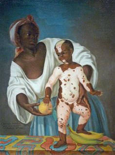 Xeljanz Treatment For Vitiligo-Vitiligo Cure Homemade Black History Facts, Art History, European History, African History, African Art, Art Noir, Black Art Pictures, Afro Art, Black Women Art