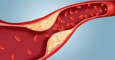 How to Clean Blood Vessels from Cholesterol Residue for 40 days