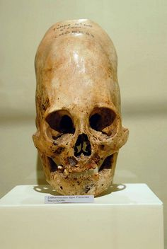 So the Ancient Aliens theorists believe that skulls like these belong to human/alien hybrids; PROOF, so they say, of our planet's having been visited in the past by extraterrestrial beings, and supporting the claim that we were at least partially engineered.